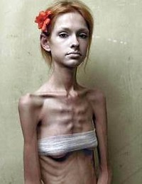 Anorexic And Young..